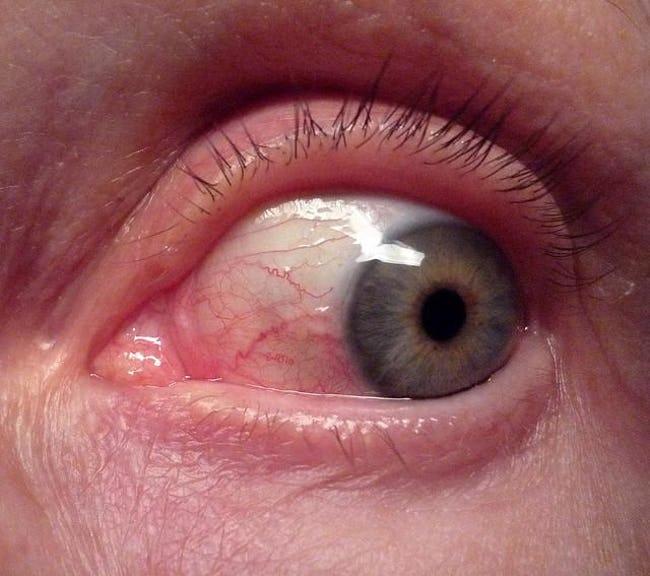 Eyeball.jpg.8944215befc70f1044373f293f5f7603.jpg
